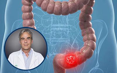 cancer de colon foro tincturi de helmint