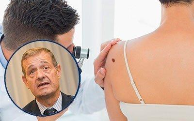 España se sitúa como uno de los países con mayor participación de pacientes con melanoma en ensayos clínicos