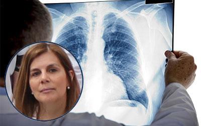 La investigación ha permitido la reducción en un 20% de la tasa de mortalidad esperada en cáncer de pulmón